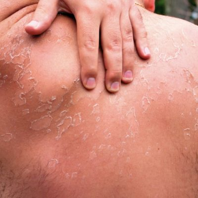 huden er solskoldet og skaller